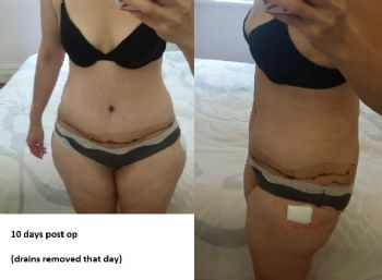 I had tummy tuck surgery - warning graphic pictures